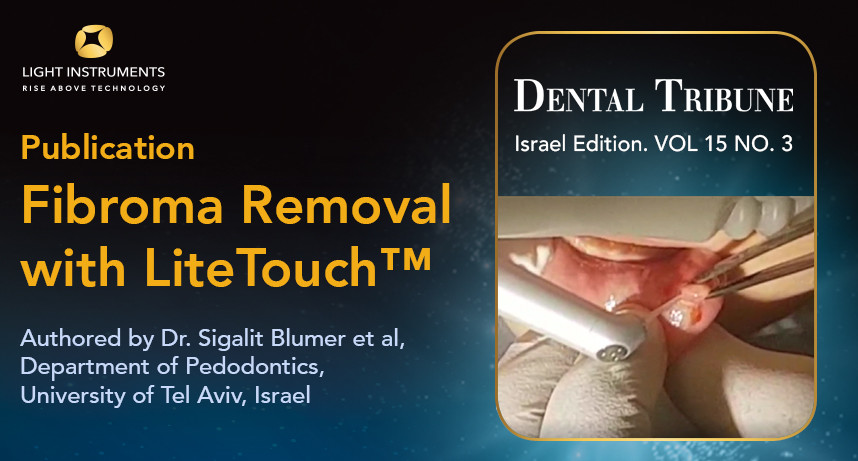 Fibroma removal with LiteTouch™ Er:YAG laser