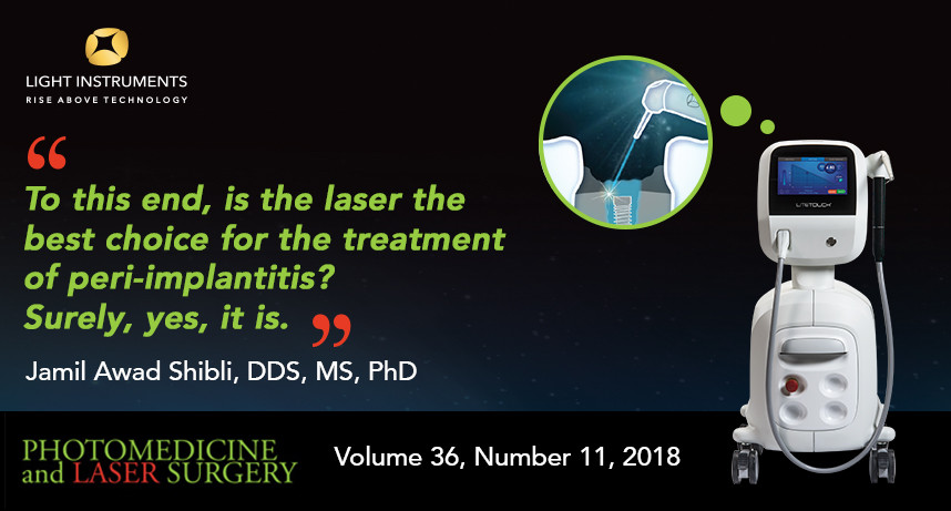 Is Laser the Best Choice for the Treatment of Peri-Implantitis?