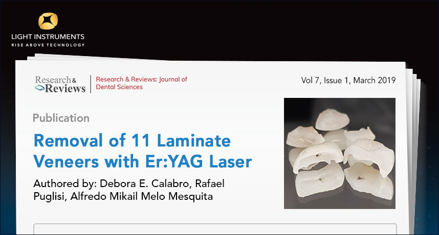 New Article: Removal of 11 Laminate Veneers with Er:YAG Laser