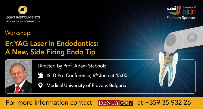 Er:YAG Laser in Endodontics: A New, Side Firing Endo Tip
