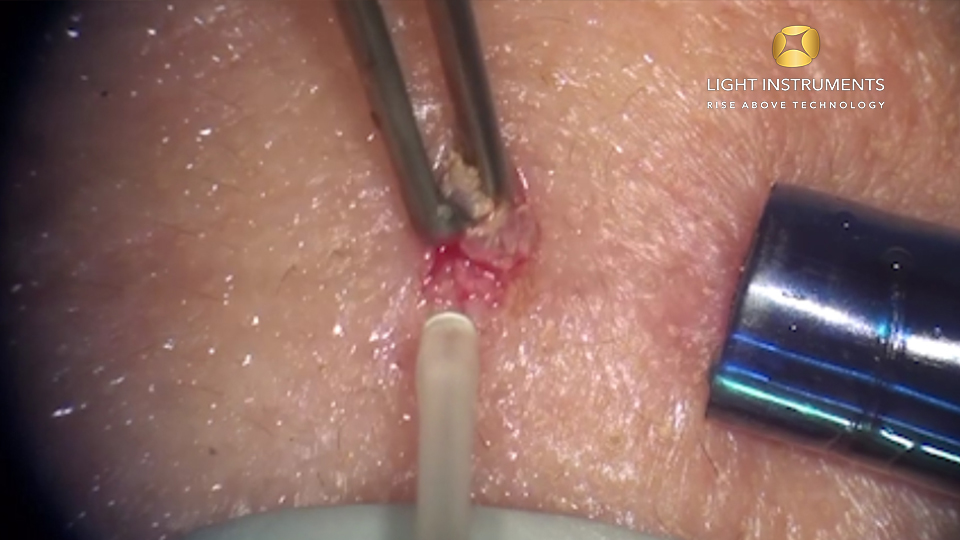 <strong> Fibroma removal with LiteTouch™ Er:YAG laser </strong>