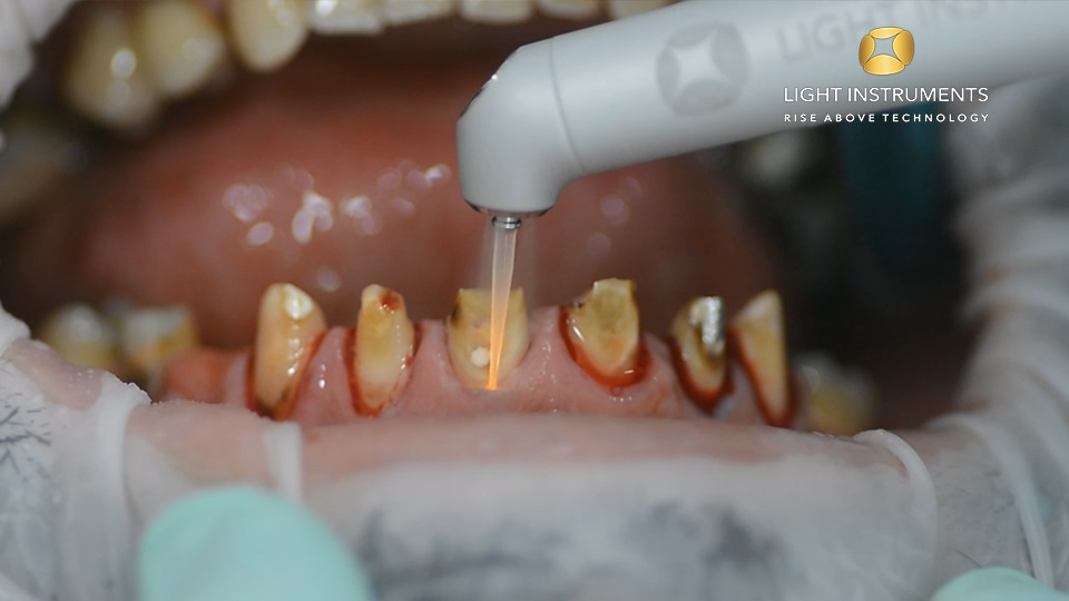 <strong>Gingival reconstruction and disinfection with LiteTouch™ Er:YAG laser</strong>