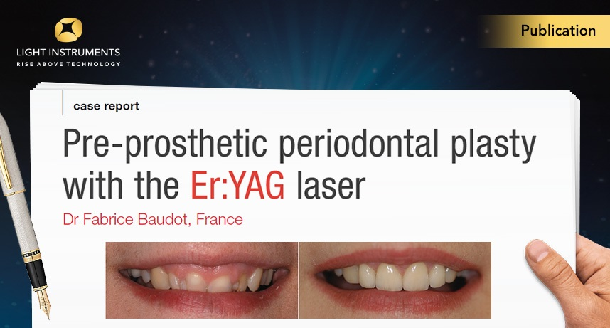 Pre-prosthetic periodontal plasty with the Er:YAG laser