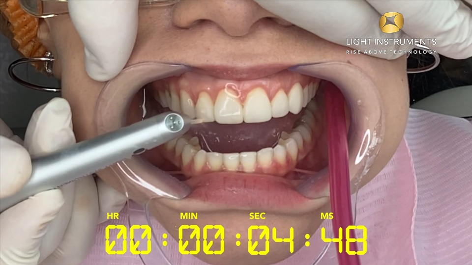 <strong>Veneer removal with LiteTouch™ Er:YAG laser (countdown)</strong>